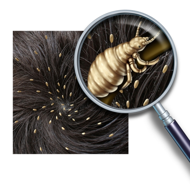 lice-iStock_000027130363_Large