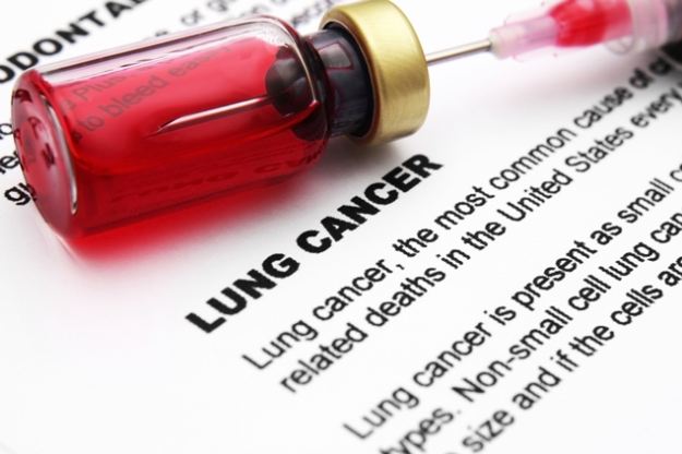 lung-cancer-awareness-iStock_000026267516_Large