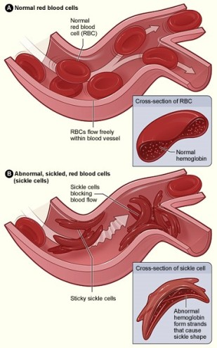sickle cells